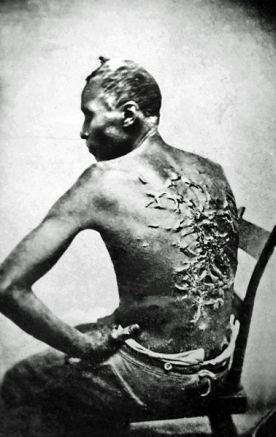 Ubiczowany niewolnik (zdjęcie z 1863 r.). Handel niewolnikami to jeden z najbardziej haniebnych procederów jakich dopuszczali się